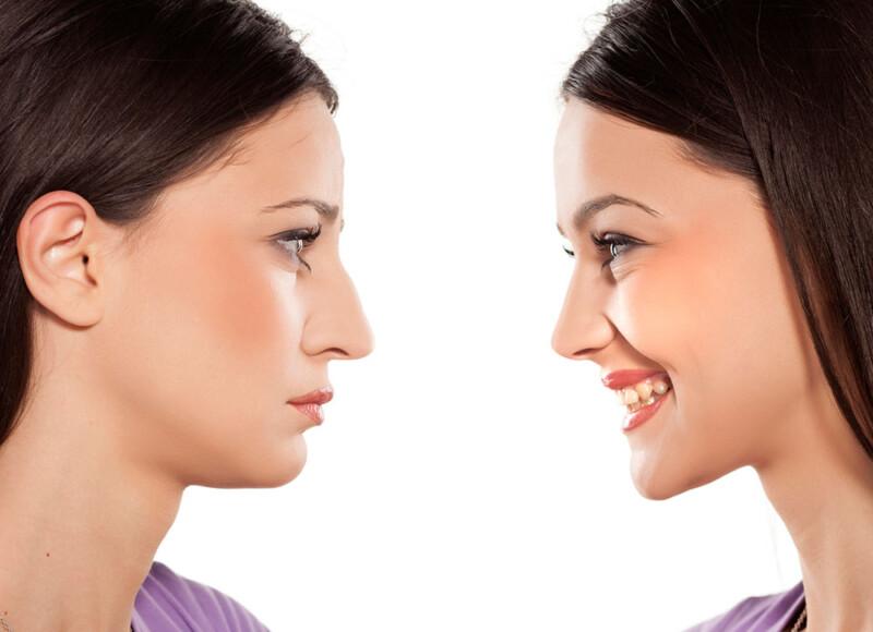 Nase vor und nach der Operation