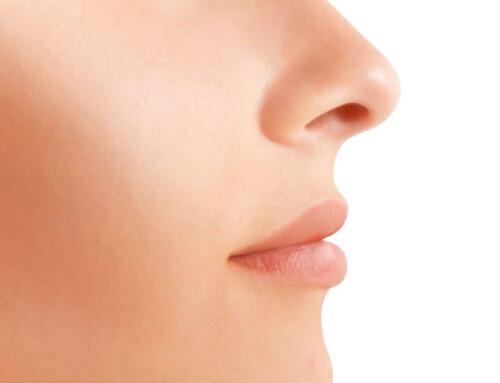 Meine Erfahrung mit der Nasenkorrektur