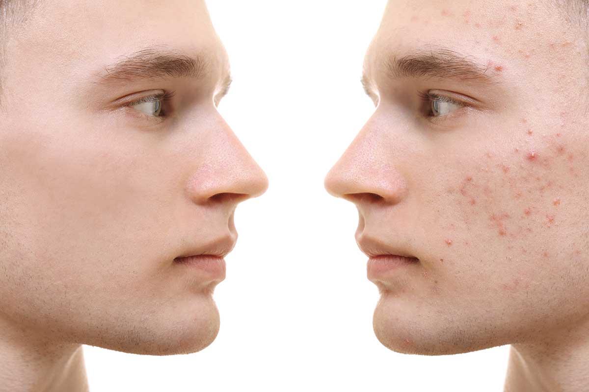 Akne und Hautunreinheiten