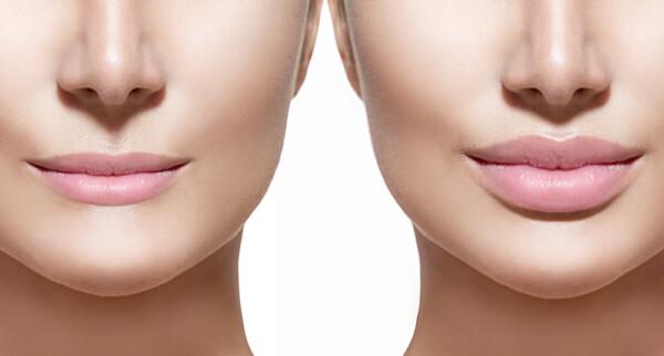 Hyaluron gegen Falten und für volle Lippen