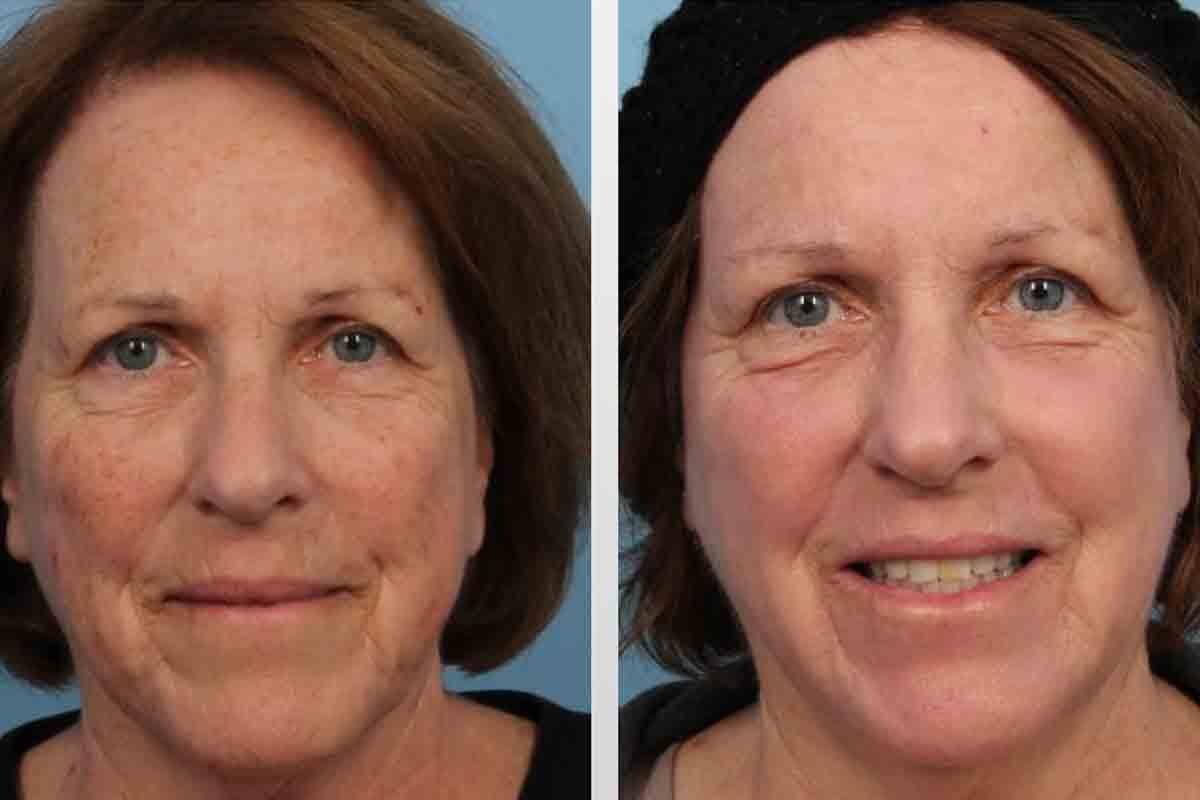 Pigmentflecken Im Gesicht Lasern