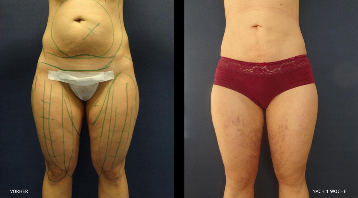 Liposuktion vorher/nachher