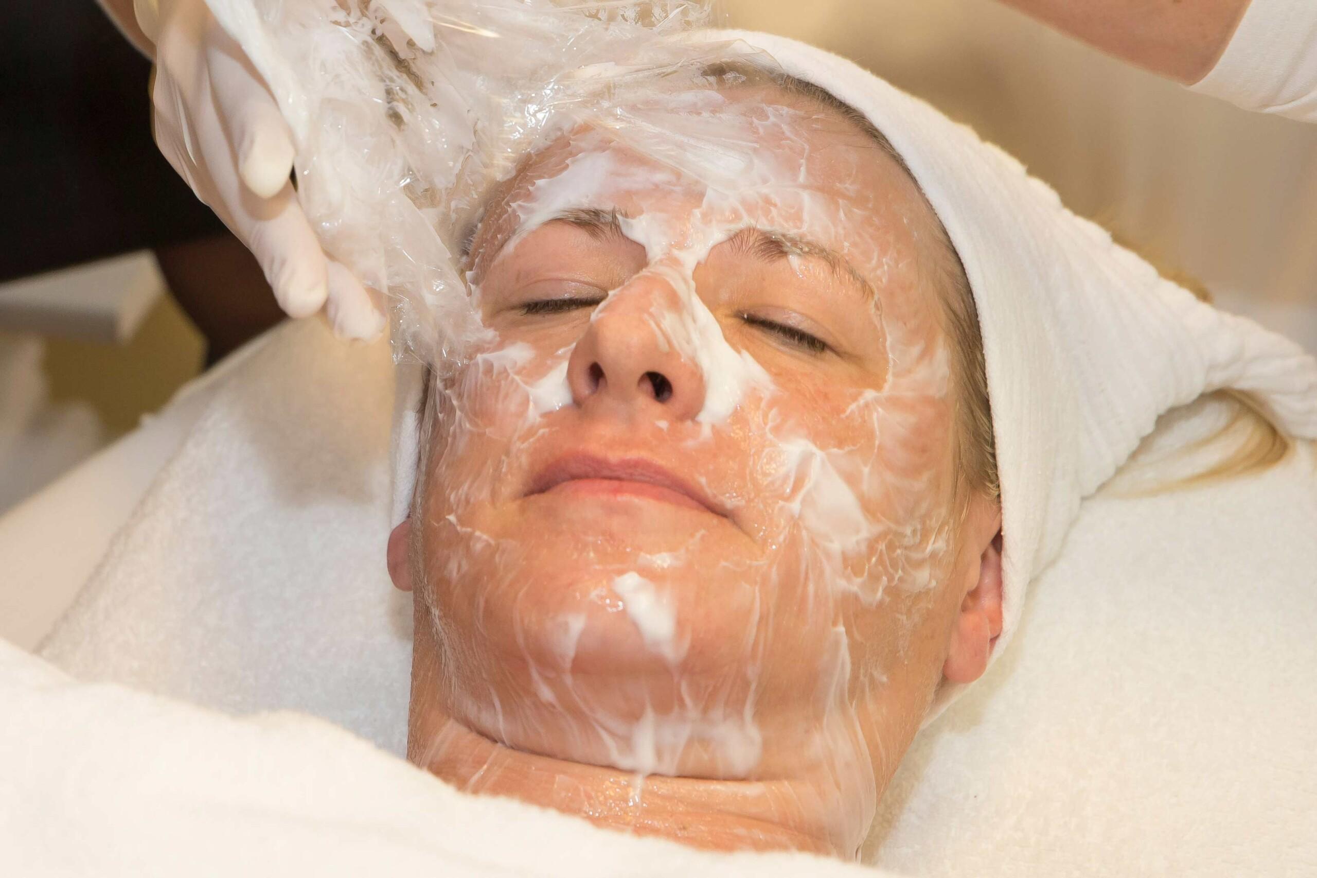 Microneedling Gesicht betäubt