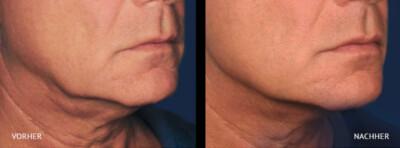 Ulthera Hautsraffung vorher/nachher