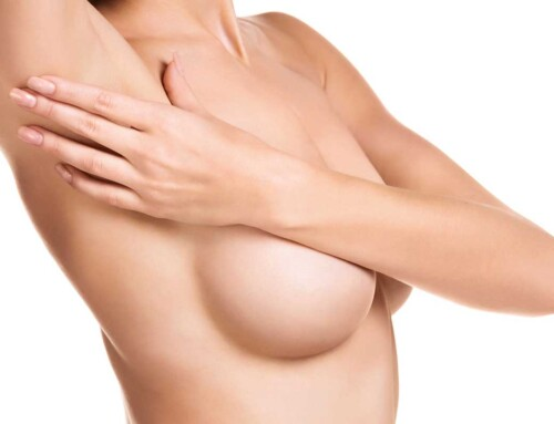 Meine neue Brust